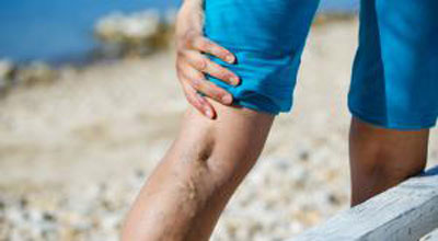 Varicose Veins: More than just a Vanity Issue