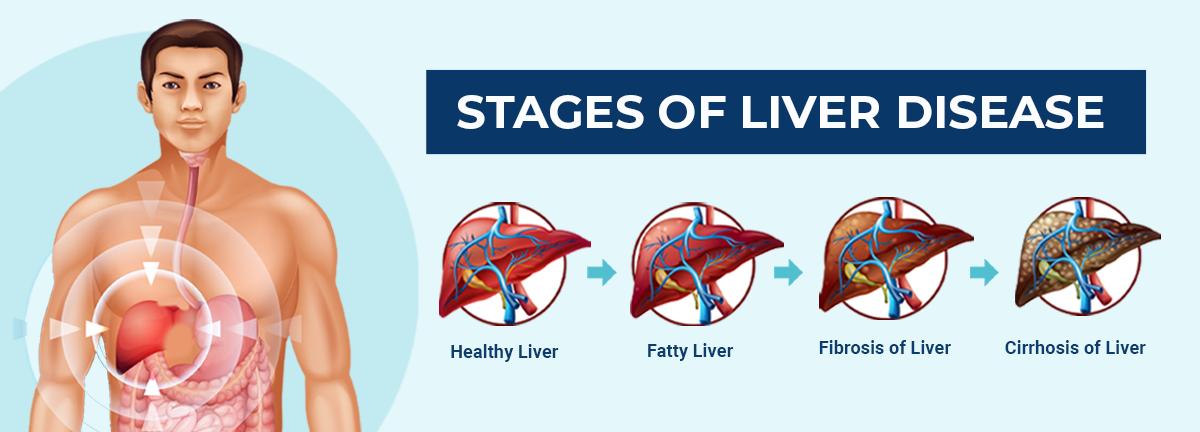 Web banner for liver